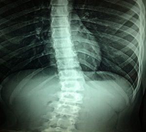Radiografia lesiones accidente de tráfico