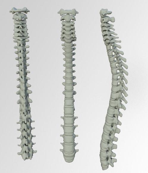 indemnización hernia discal
